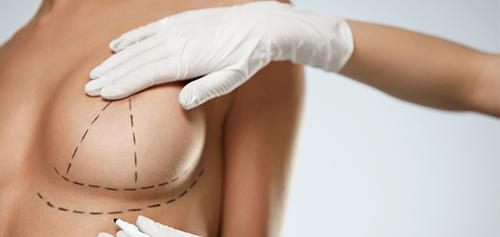 mastoplastica interventi al seno