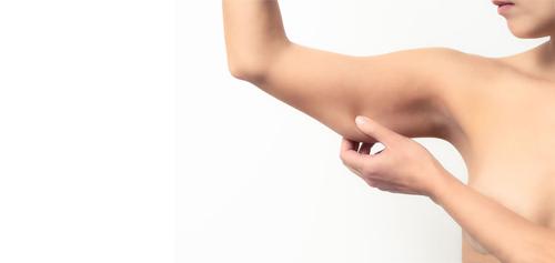 liposuzione braccia